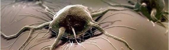 Почему рак называется раком