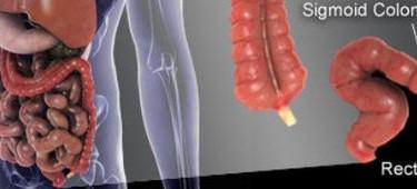 Опухоль прямой кишки