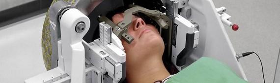 Лучевая терапия при раке головы и шеи