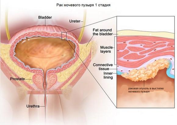 рак мочевого пузыря 1 стадии