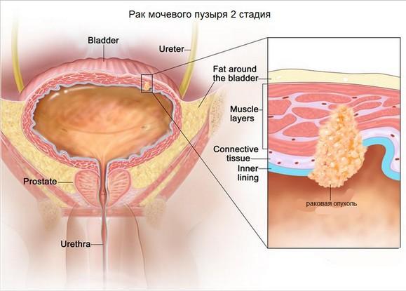 рак мочевого пузыря 2 стадии
