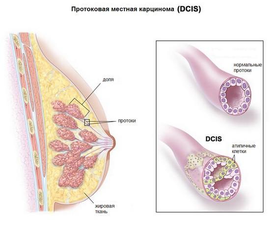 Стадия 0 рака молочной железы