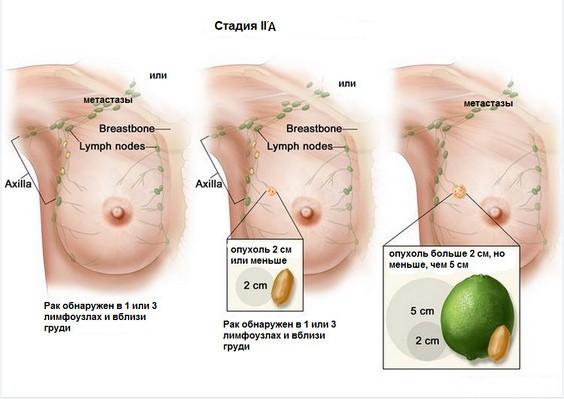 рак молочной железы 2 стадия