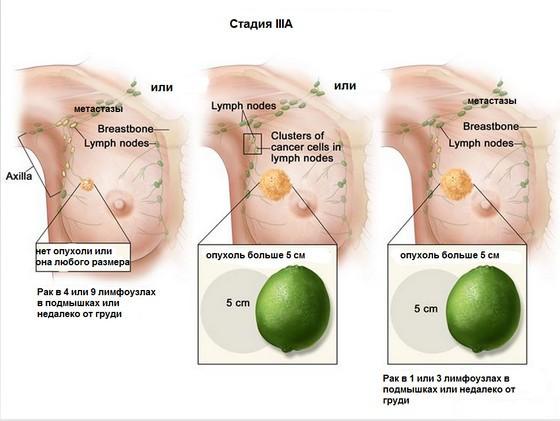 рак молочной железы стадия 3