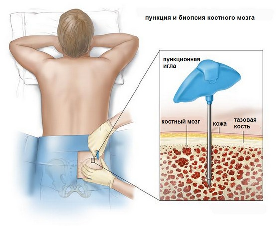 пункция и биопсия