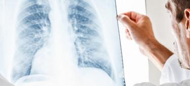 лечение немелкоклеточного рака легких