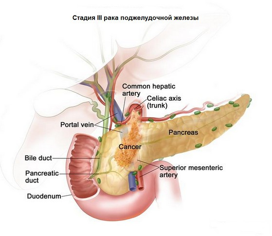 стадии рака поджелудочной железы